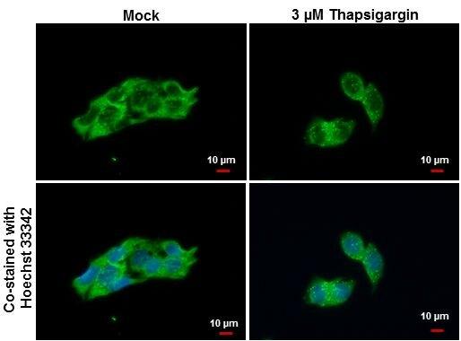 LC3B Antibody (PA5-32254)