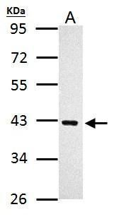 PRMT1 Antibody (PA5-32257) in Western Blot