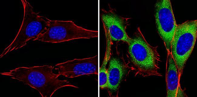 PIK3R1 Antibody (PA5-32550)