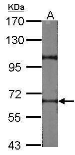 RAD17 Antibody (PA5-34627)