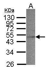 ACADS Antibody (PA5-34639) in Western Blot