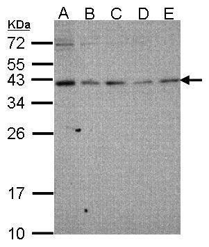 RAD51 Antibody (PA5-34642) in Western Blot