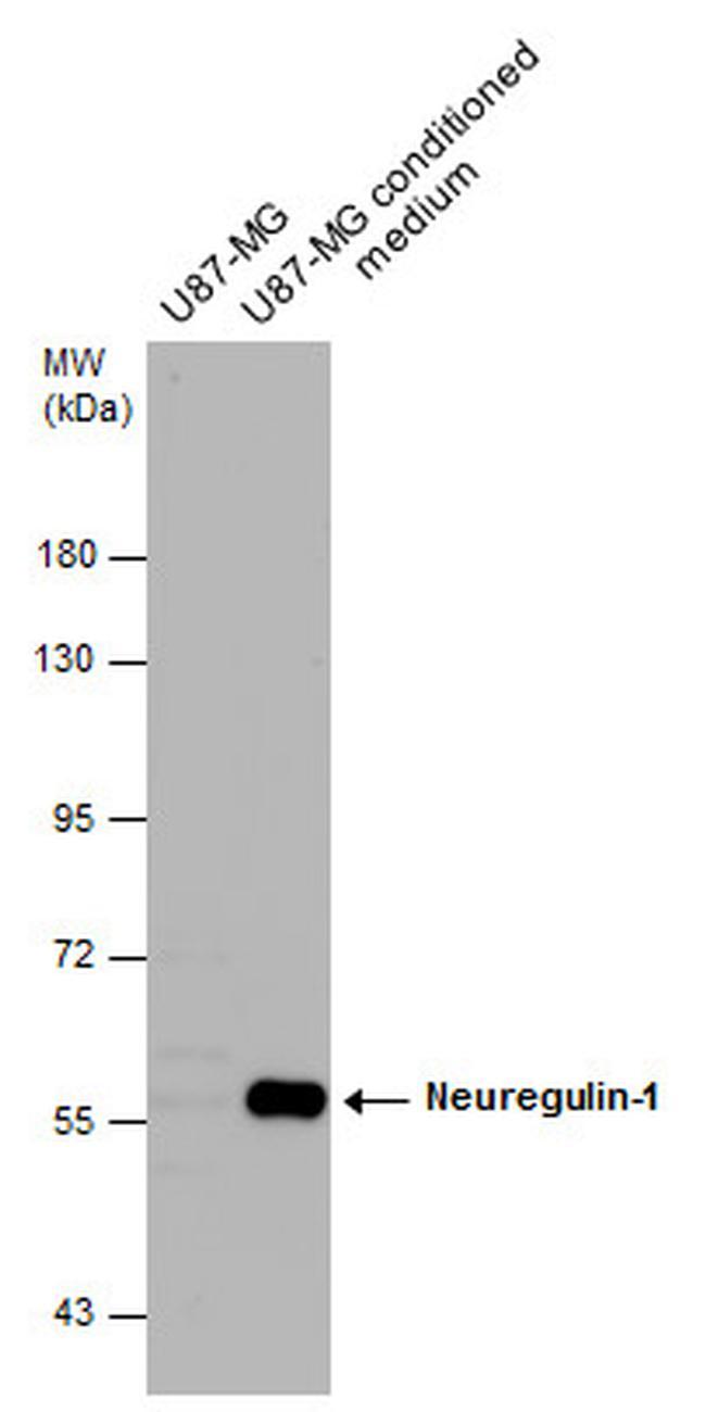 NRG1 Antibody (PA5-34648) in Western Blot