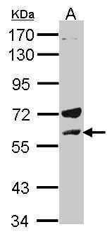 LCK Antibody (PA5-34653) in Western Blot