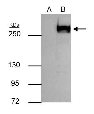 mTOR Antibody (PA5-34663) in Immunoprecipitation