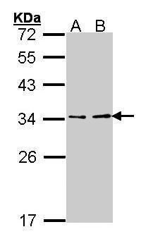 V-ATPase E1 Antibody (PA5-34668) in Western Blot