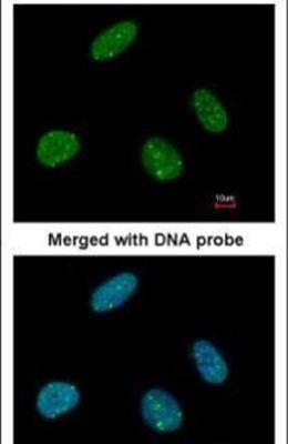 53BP1 Antibody (PA5-34675) in Immunofluorescence