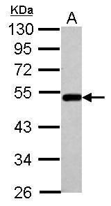 BLMH Antibody (PA5-34680) in Western Blot