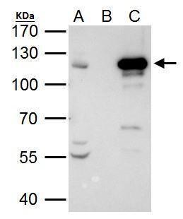 STAT2 Antibody (PA5-34683) in Immunoprecipitation