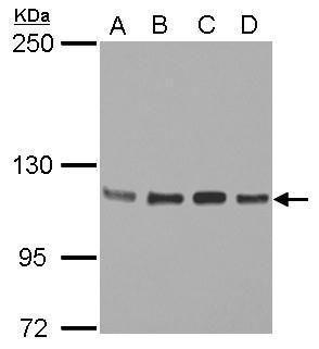 STAT2 Antibody (PA5-34683) in Western Blot
