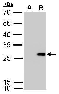 Calretinin Antibody (PA5-34688) in Western Blot