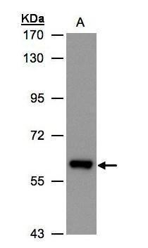 ALDH6A1 Antibody (PA5-34691) in Western Blot