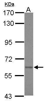 Asparagine Synthetase Antibody (PA5-34693)