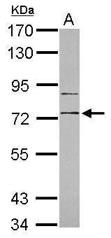 CD180 Antibody (PA5-34695) in Western Blot