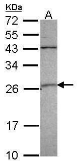 GSTA4 Antibody (PA5-34698) in Western Blot