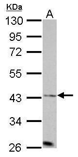 Aurora A Antibody (PA5-34700) in Western Blot