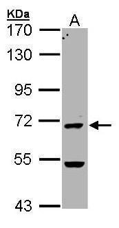 PADI4 Antibody (PA5-34702)