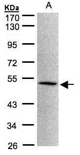 MOK Antibody (PA5-34705) in Western Blot