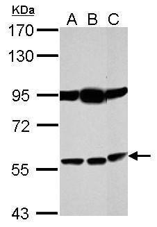 Bestrophin 1 Antibody (PA5-34709) in Western Blot