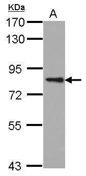 PKC epsilon Antibody (PA5-34710) in Western Blot