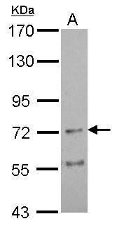 CHRNA4 Antibody (PA5-34714) in Western Blot