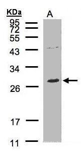 NTAL Antibody (PA5-34717)