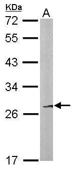 FAM122B Antibody (PA5-34720) in Western Blot