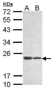 C11orf85 Antibody (PA5-34721) in Western Blot