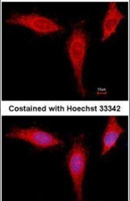 eIF4A1 Antibody (PA5-34726) in Immunofluorescence