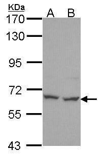 PNK Antibody (PA5-34731)