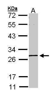 GK5 Antibody (PA5-34732) in Western Blot