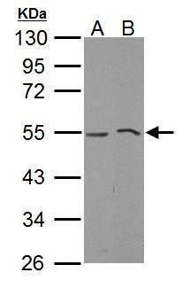 MLKL Antibody (PA5-34733) in Western Blot