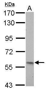 PKLR Antibody (PA5-34734) in Western Blot