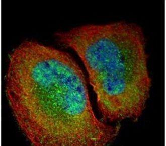 NFkB p65 Antibody (PA5-34737) in Immunofluorescence