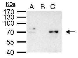 NFkB p65 Antibody (PA5-34737) in Immunoprecipitation