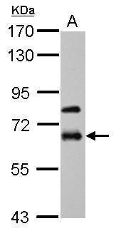 MMP19 Antibody (PA5-34748) in Western Blot