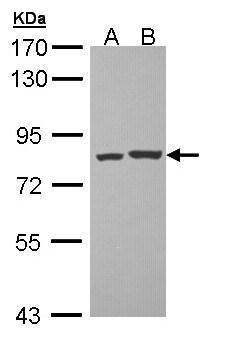PKC theta Antibody (PA5-34752) in Western Blot