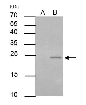 PUMA Antibody (PA5-34755) in Immunoprecipitation