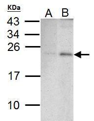 PUMA Antibody (PA5-34755) in Western Blot