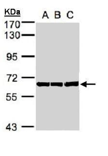 HSP60 Antibody (PA5-34760) in Western Blot