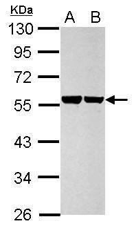 Cytokeratin 8 Antibody (PA5-34762) in Western Blot