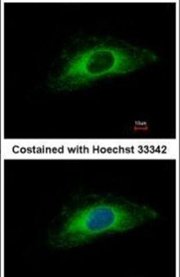 Cytokeratin 7 Antibody (PA5-34764) in Immunofluorescence