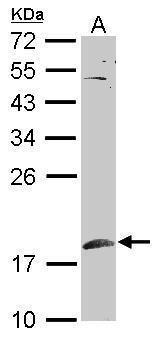 SUMO1 Antibody (PA5-34765) in Western Blot