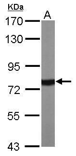 HSP70 Antibody (PA5-34772) in Western Blot