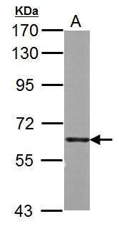PKM2 Antibody (PA5-34779) in Western Blot