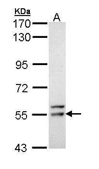 FRK Antibody (PA5-34782) in Western Blot