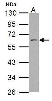ABI1 Antibody (PA5-34783)