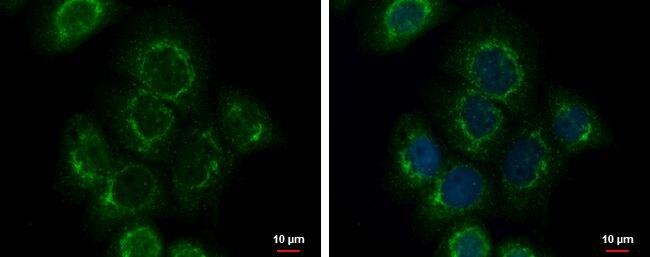 Fibulin 3 Antibody (PA5-34788) in Immunofluorescence
