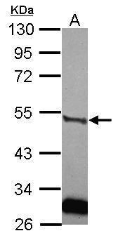 Urokinase Antibody (PA5-34790) in Western Blot