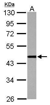 CSTF1 Antibody (PA5-34796) in Western Blot